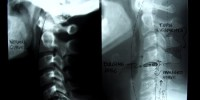 A common injury that often goes unnoticed after a car accident is whiplash.
